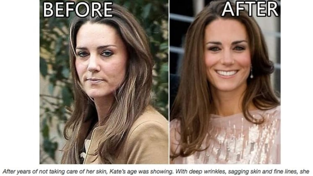 Kate Middleton Skincare Product Scam Detector